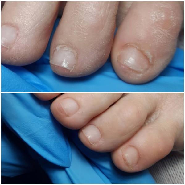 Обработка пальчиков на ножках - это та еще работа.