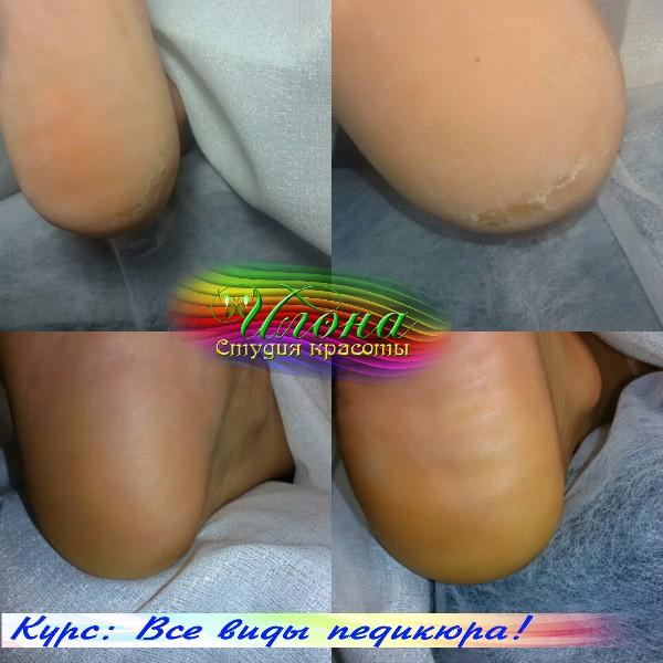 Нежные, бархатистые и мягкие пяточки приятно ощущать на ножках любой девушке.